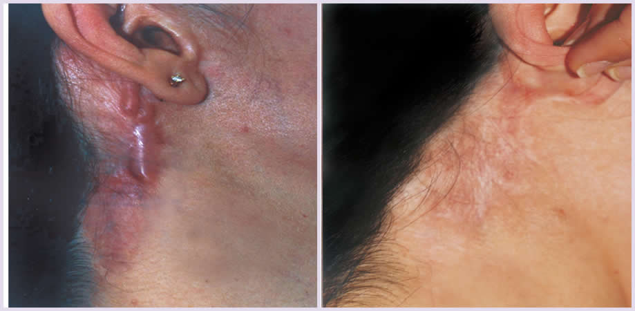 Laser Treatment For Acne Scar Keloids And Hypertrophic